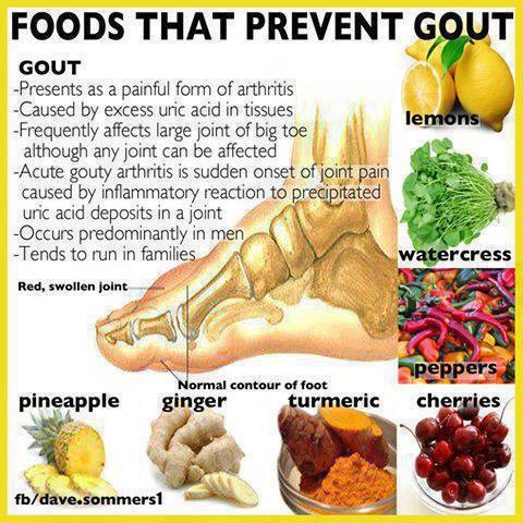 MEDICAL CORNER …. Gout! | It Is What It Is