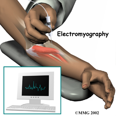 nerve conduction machine