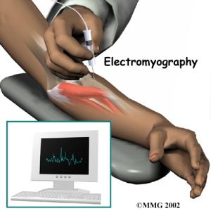 Nerve conduction study ....