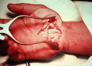 Surgery ...