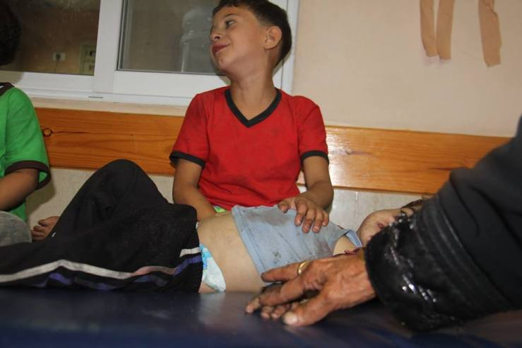 wounded children from Al-Shijaeyya area in Gaza stretching out in Gaza Hospitals which cannot any more accommodate the increasing number of injures. All of them are critical.